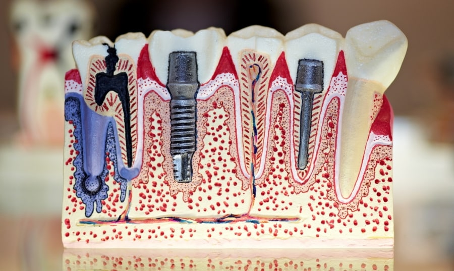 vidi-implantov-dlya-zubov