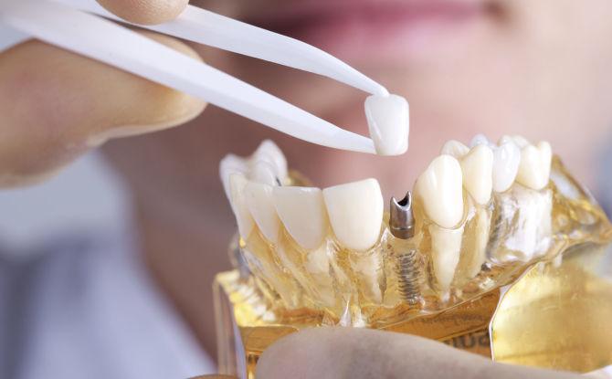 sovremennie-sposobi-protezirovaniya-zubov
